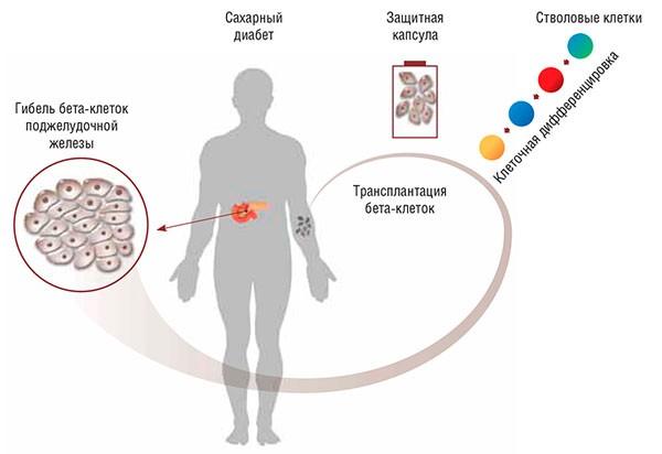 Пересадка в клеток при сахарном диабете