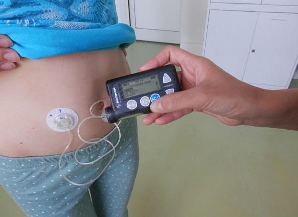 Что такое помпа у больного диабетом