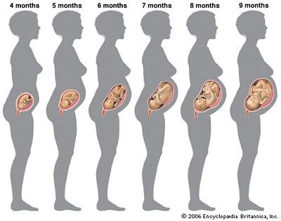 физическая нагрузка после увеличения грудины