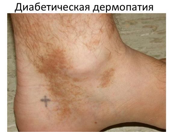 plastir-ot-saharnogo-diabeta-dzi-dao-dzhi-dao-ofitsialniy-sayt